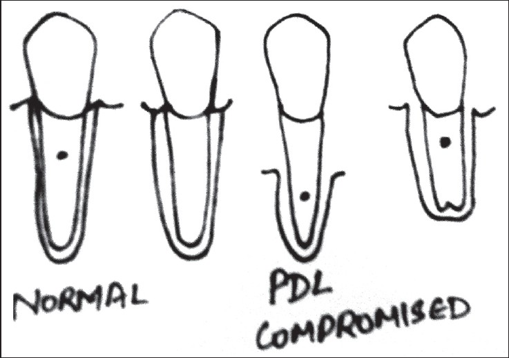 Figure 1: Normal versus teeth which are periodontally compromised with altered anteæs law (altered crown root clinical ratio)