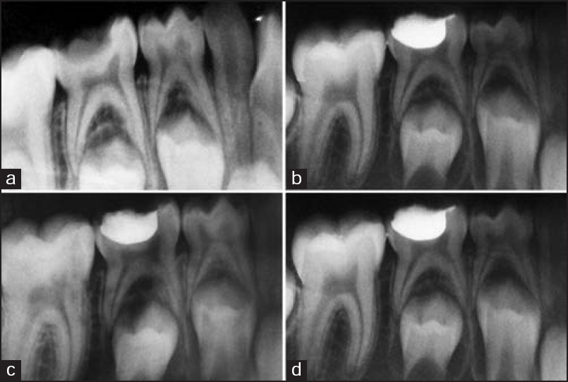 Figure 2: Follow-up radiographs of indirect pulp therapy (IPT) (a) Pre-operative; (b) 6-weeks follow-up; (c) 3-months follow-up; (d) 6-months follow-up