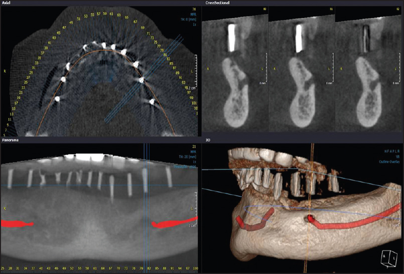 Essentials of Dental Radiography and Radiology, 4e