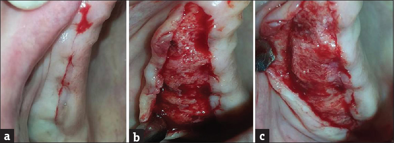 Figure 3: (a) incision over crest of ridge, maxillary left quadrant (envelope flap). (b) Irregular residual ridge exposed. (c) Alveoloplasty done with bone file