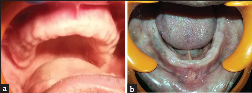 Figure 6: (a) postoperative healing was satisfactory in maxillary arch, high well-rounded denture base foundation was ready. (b) Postoperative healing was highly satisfactory in mandibular arch